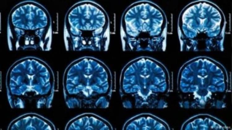 EU administrará primer dosis de medicamento contra el Alzheimer